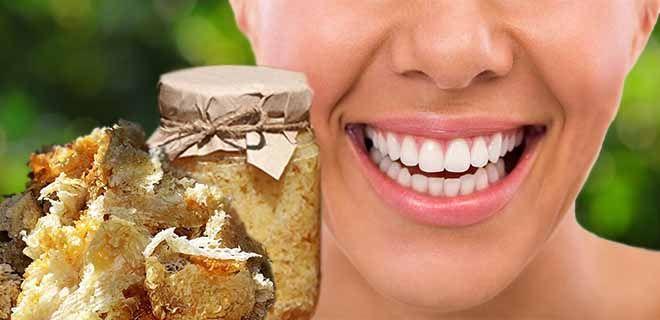 Забрус для зубов