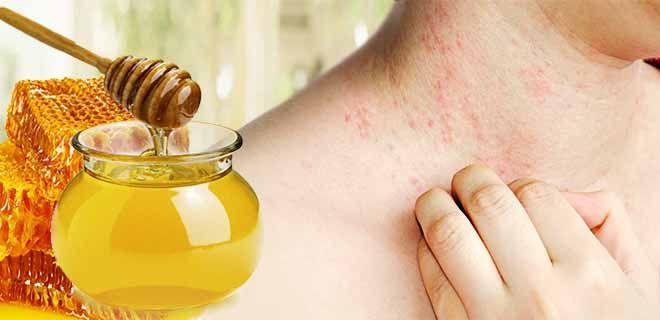 Аллергия на мед