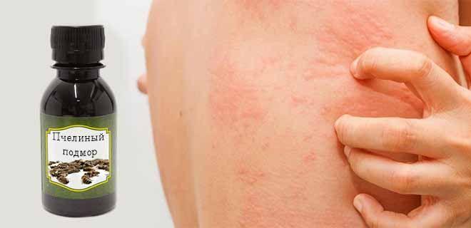 Аллергия на настойку