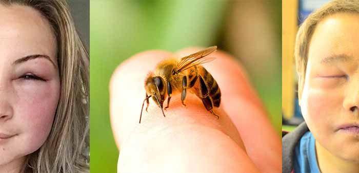 Симптомы укуса пчелы в глаз