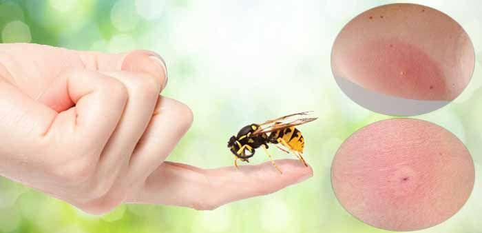 Симптомы укуса пчелы