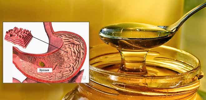 Мед при эрозивном гастрите