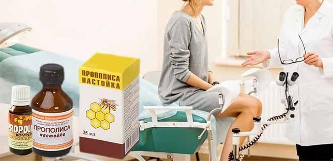 Настойка прополиса в гинекологии