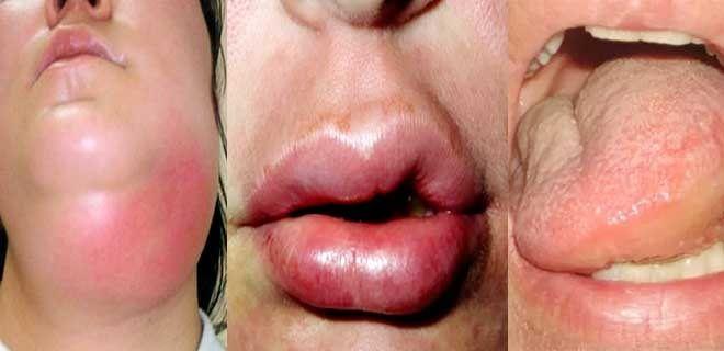 Опухший язык, губы, мягкие ткани горла