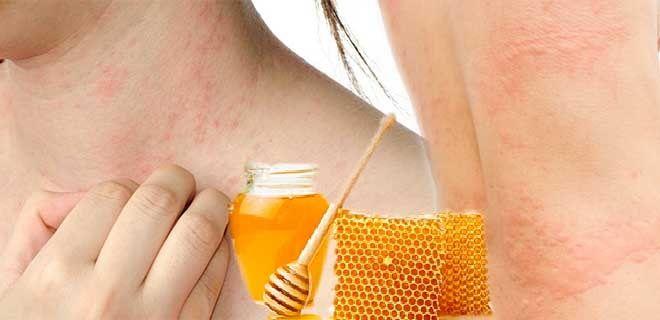 Причины аллергии на мёд