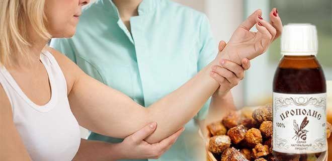 Лечение суставов прополисом