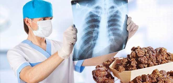 Прополис при раке легких