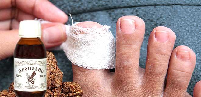 Примочки с прополисом от грибка ногтей