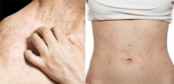 Симптомы аллергии на коже